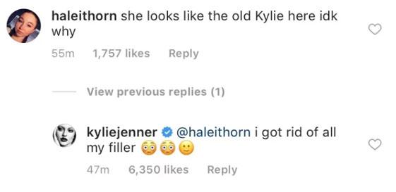 kylie-jenner tanpa lip filler