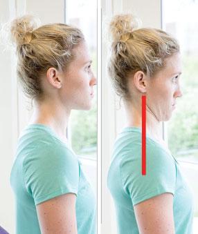 cara-perbaiki-postur-tubuh-head-retraction